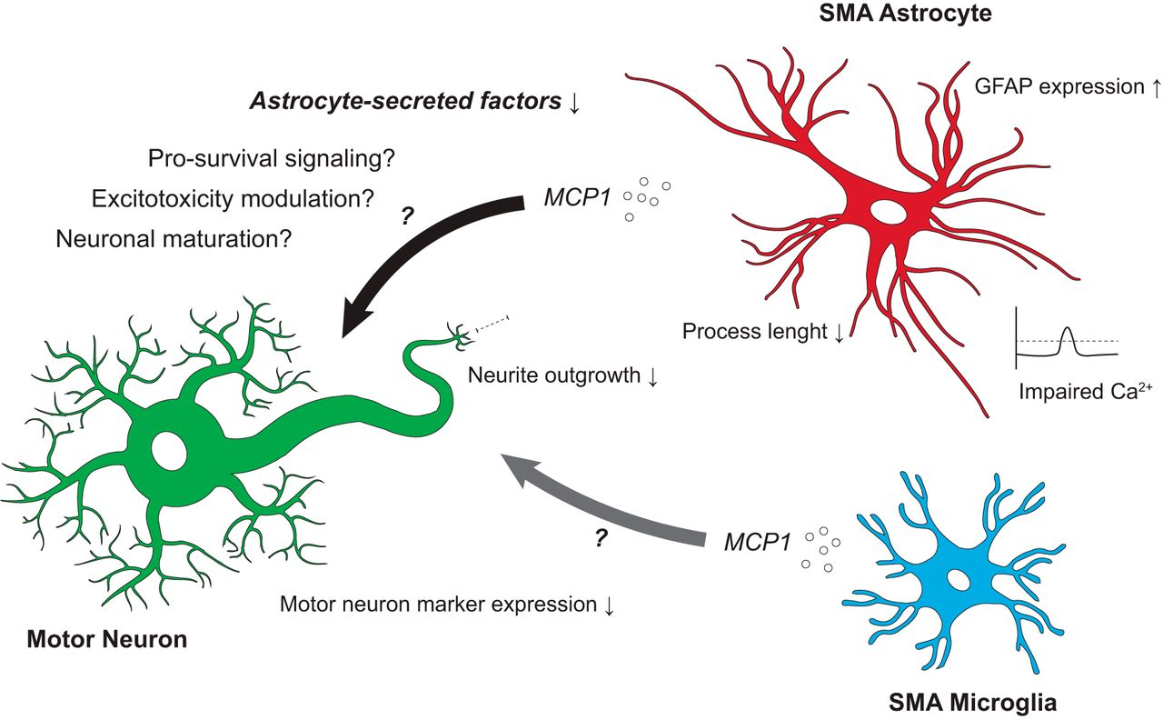 Effects of Astroglia on Motor Neurons in Spinal Muscular