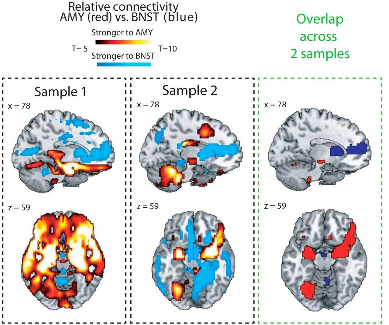 How Human Amygdala And Bed Nucleus Of The Stria Terminalis May Drive