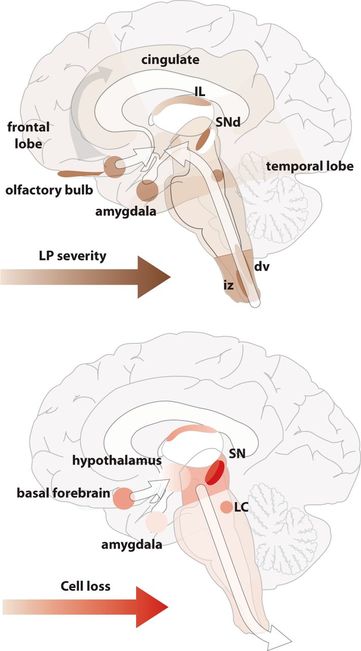 Parkinson\'s Disease Is Not Simply a Prion Disorder | Journal of ...