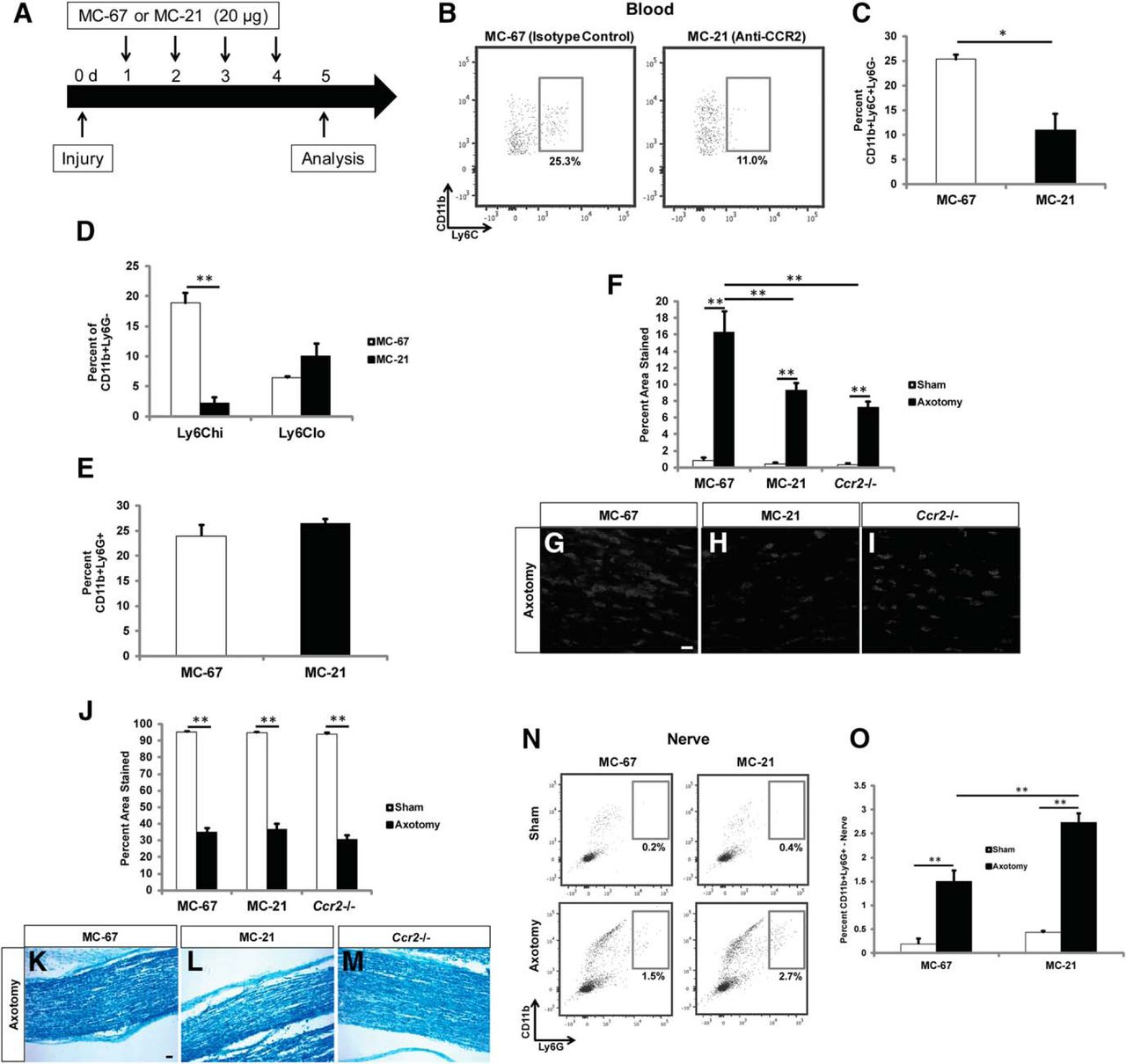 Neutrophils Are Critical for Myelin Removal in a Peripheral