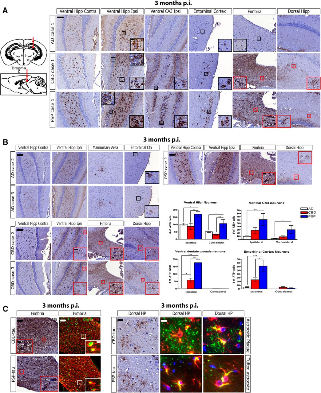 Pathological Tau Strains from Human Brains Recapitulate the