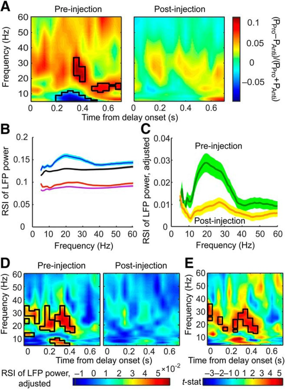 Ketamine Alters Lateral Prefrontal Oscillations in a Rule