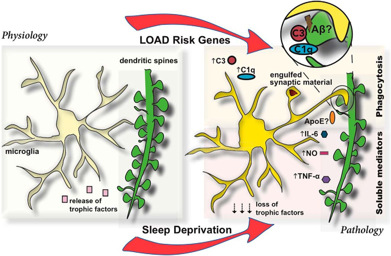 Microglia-Mediated Synapse Loss in Alzheimer's Disease