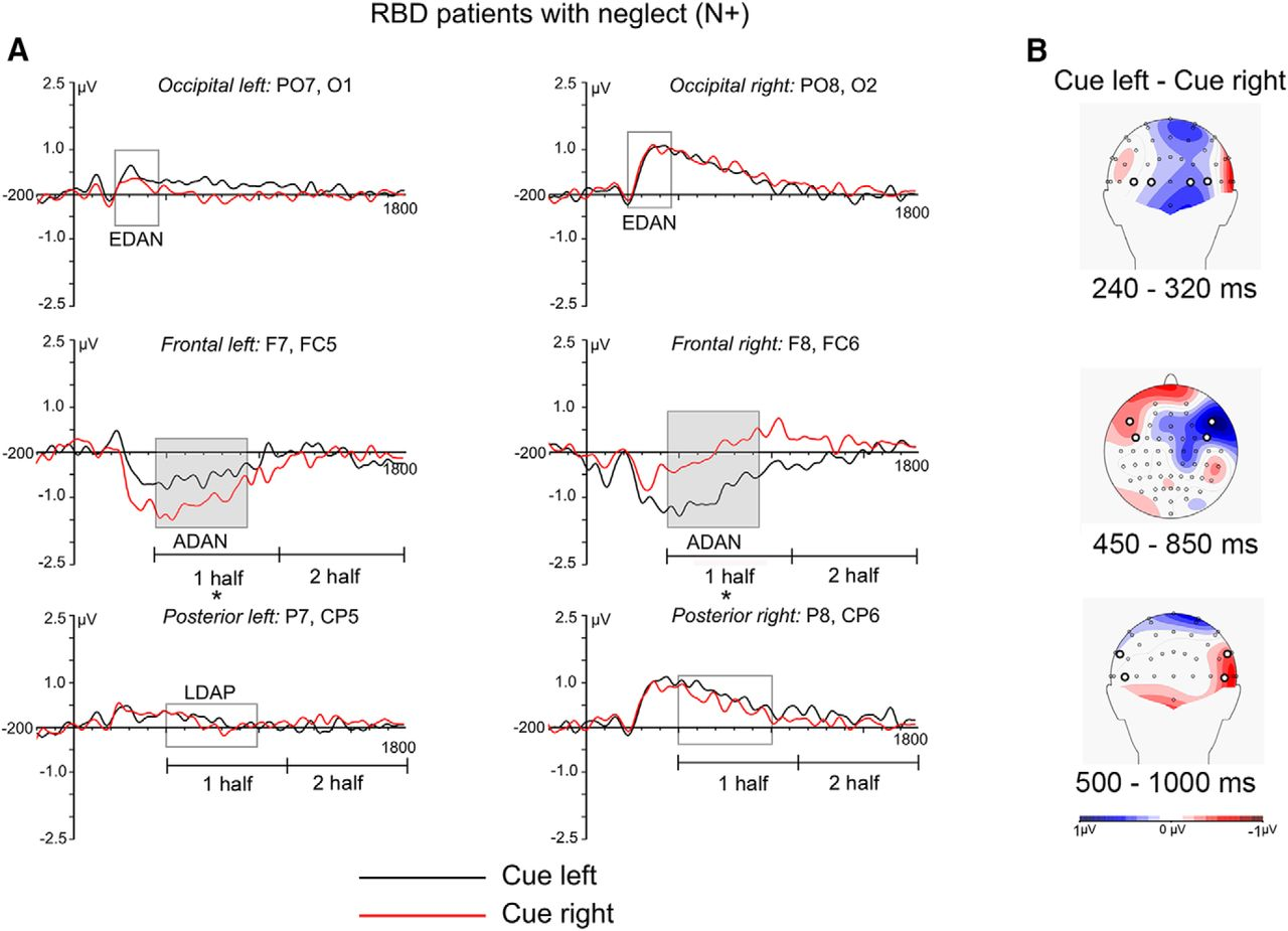Eeg Correlates Of Preparatory Orienting Contextual Updating And Ass 5 Plastic Parts Mm Reverse Locking Circuit Board Support Inhibition Sensory Processing In Left Spatial Neglect Journal Neuroscience