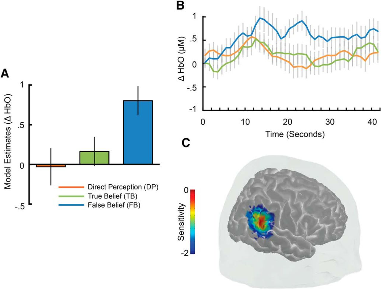 Functional Organization of the Temporal–Parietal Junction