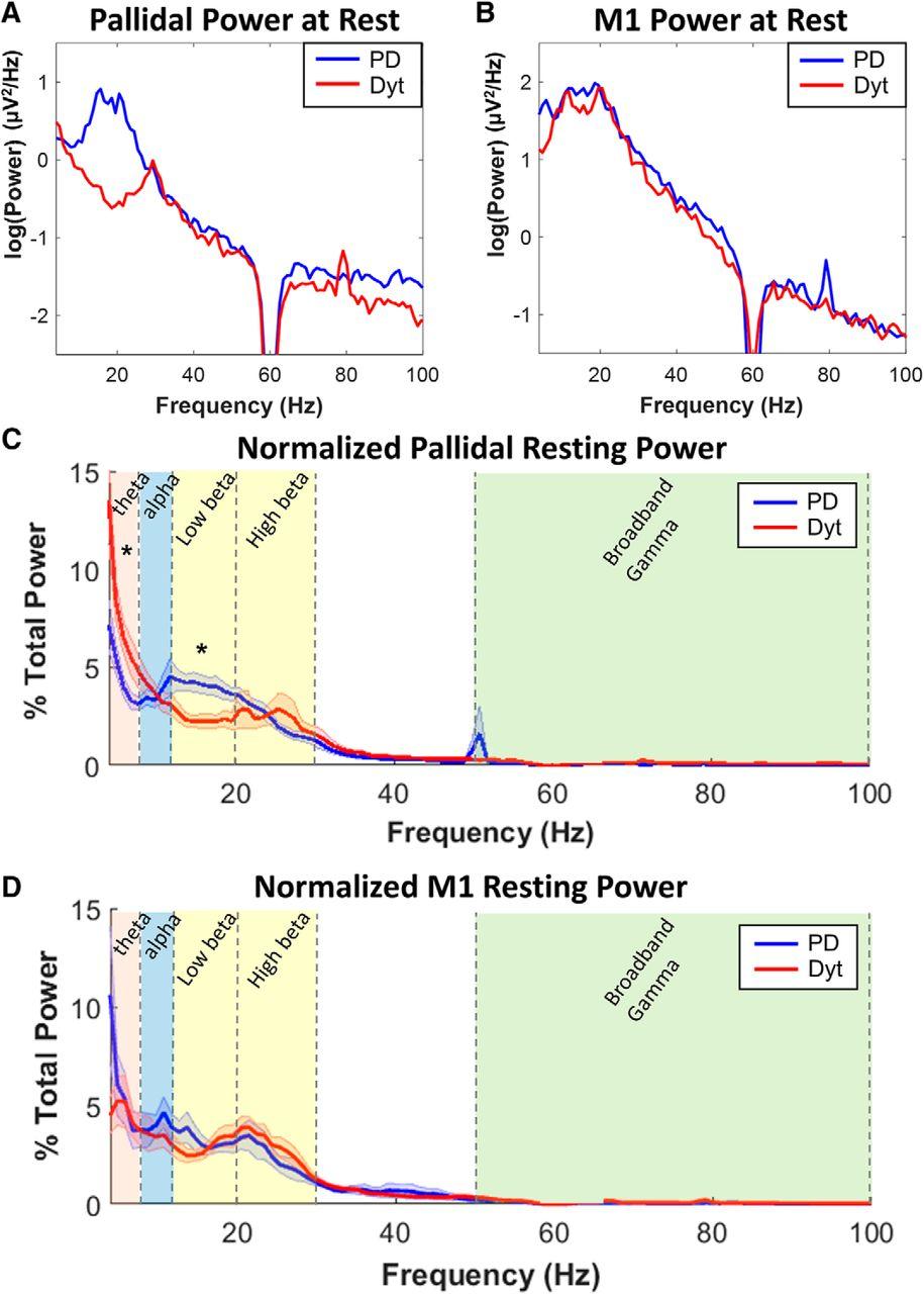 Pallidal Deep-Brain Stimulation Disrupts Pallidal Beta Oscillations