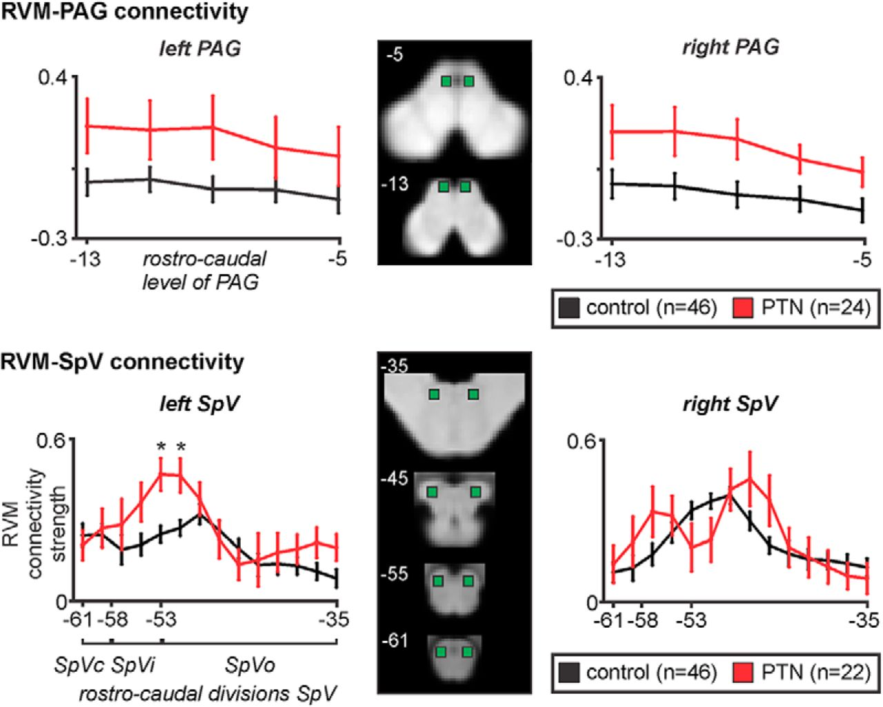 Brainstem Pain Control Circuitry Connectivity In Chronic Neuropathic Series Figure 3 13 Comparison Of Basic And Circuits Download