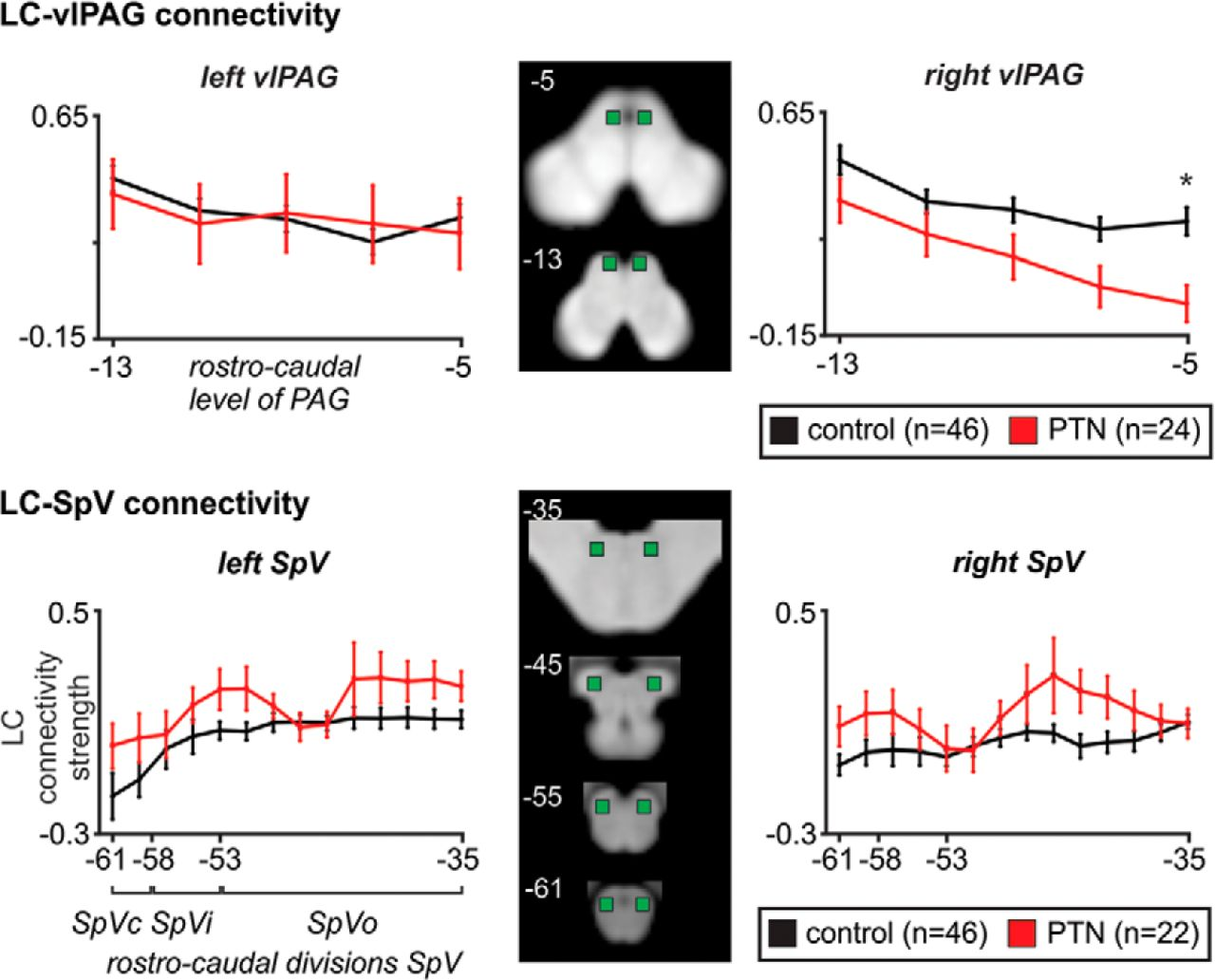 Brainstem Pain-Control Circuitry Connectivity in Chronic Neuropathic ...
