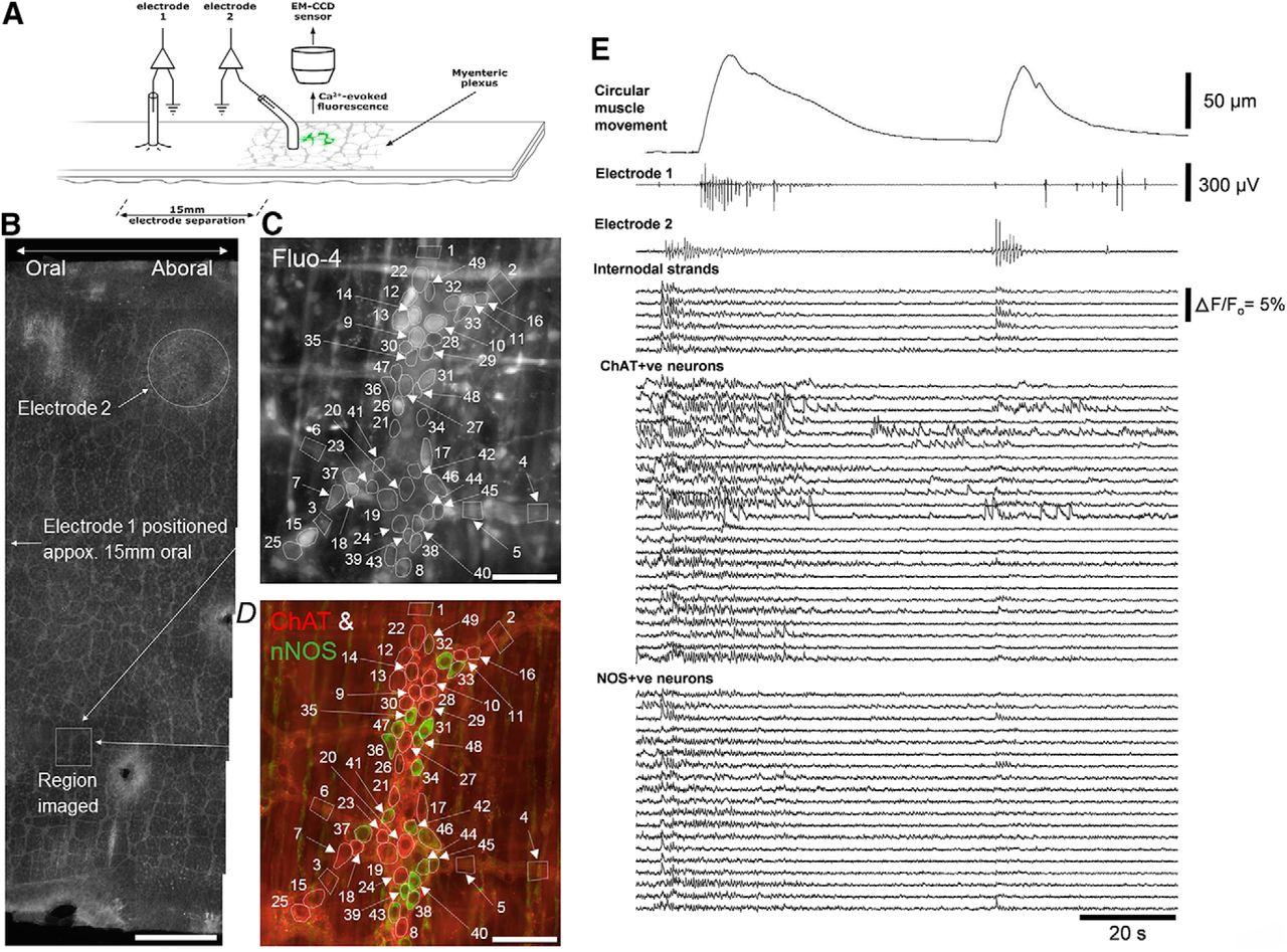 Identification Of A Rhythmic Firing Pattern In The Enteric Nervous Figure 1 Block Diagram Emg Sensor Download