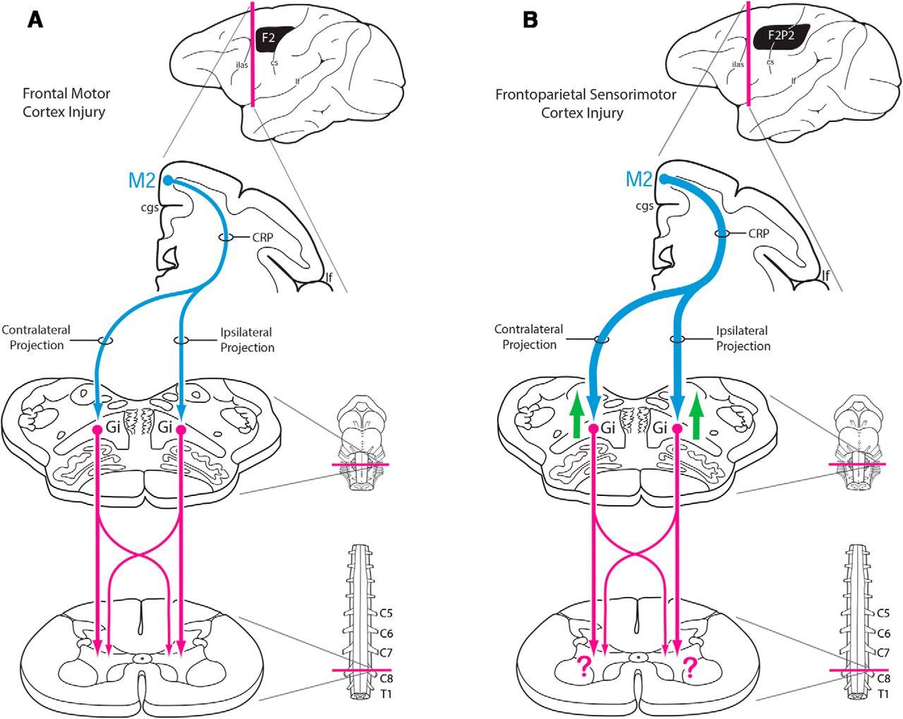 Hand Motor Recovery Following Extensive Frontoparietal Cortical ...