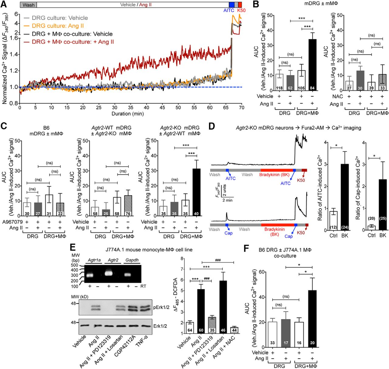 Angiotensin II Triggers Peripheral Macrophage-to-Sensory Neuron