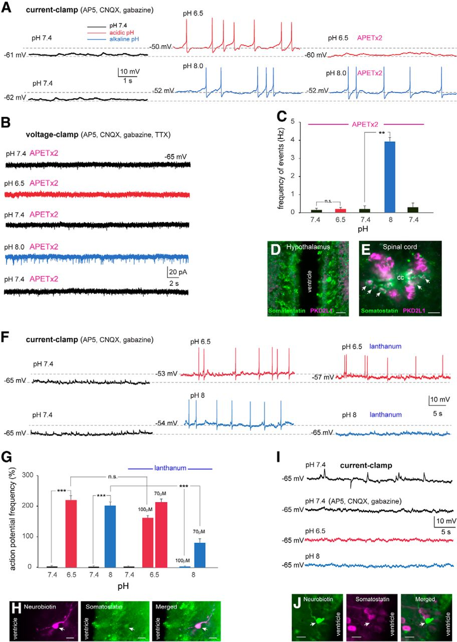 Cerebrospinal Fluid-Contacting Neurons Sense pH Changes and
