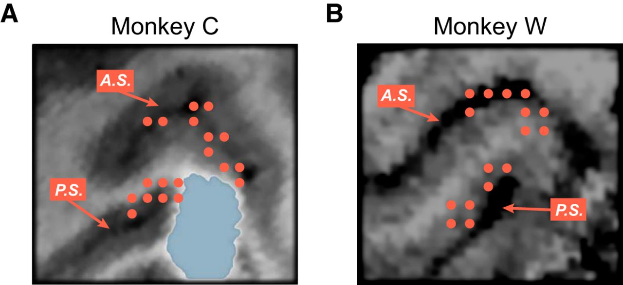Dissociation of LFP Power and Tuning in the Frontal Cortex during