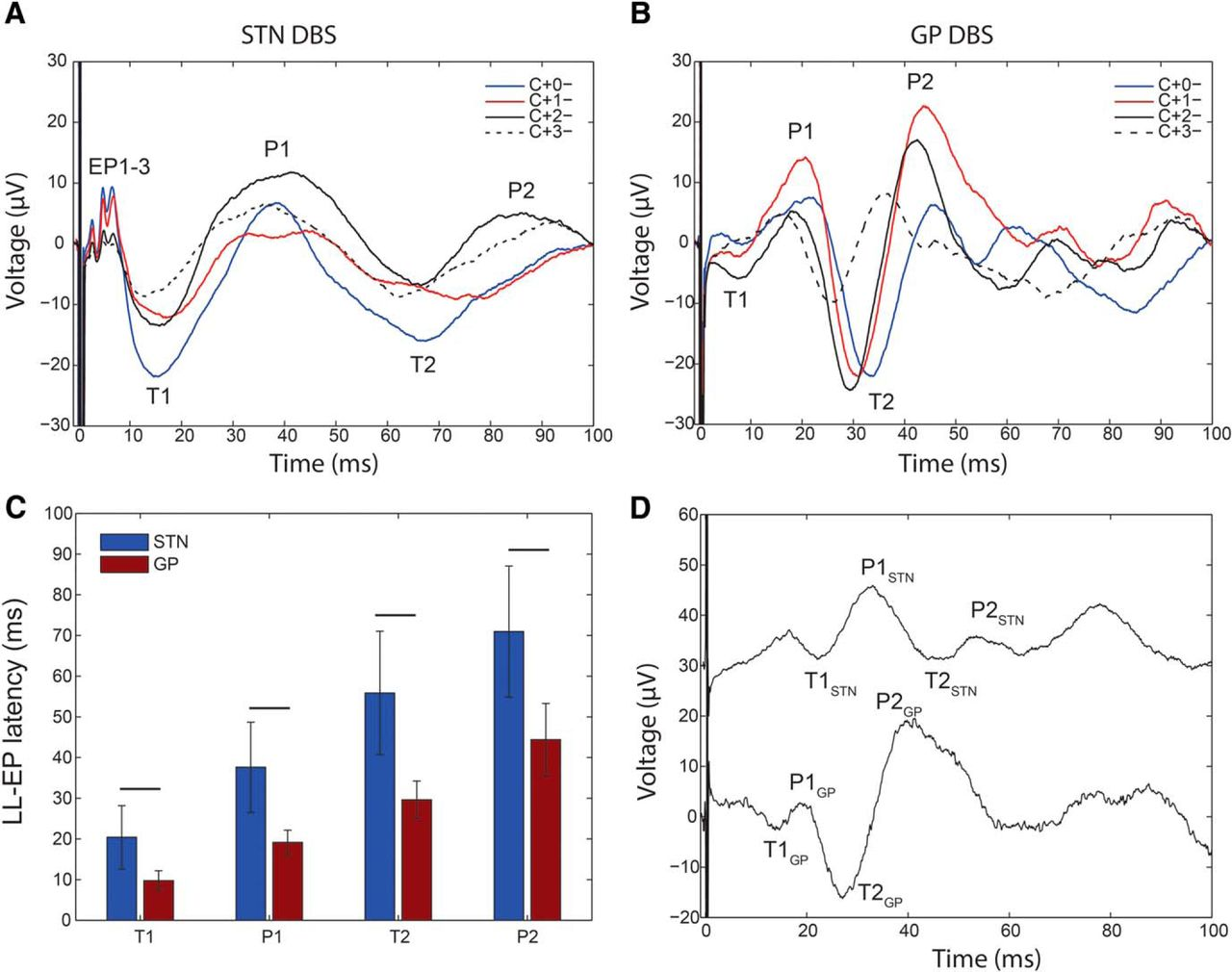 Cortical Potentials Evoked By Subthalamic Stimulation Demonstrate A Anatomy Of Short Circuit Open Electrical Download Figure In New Tab