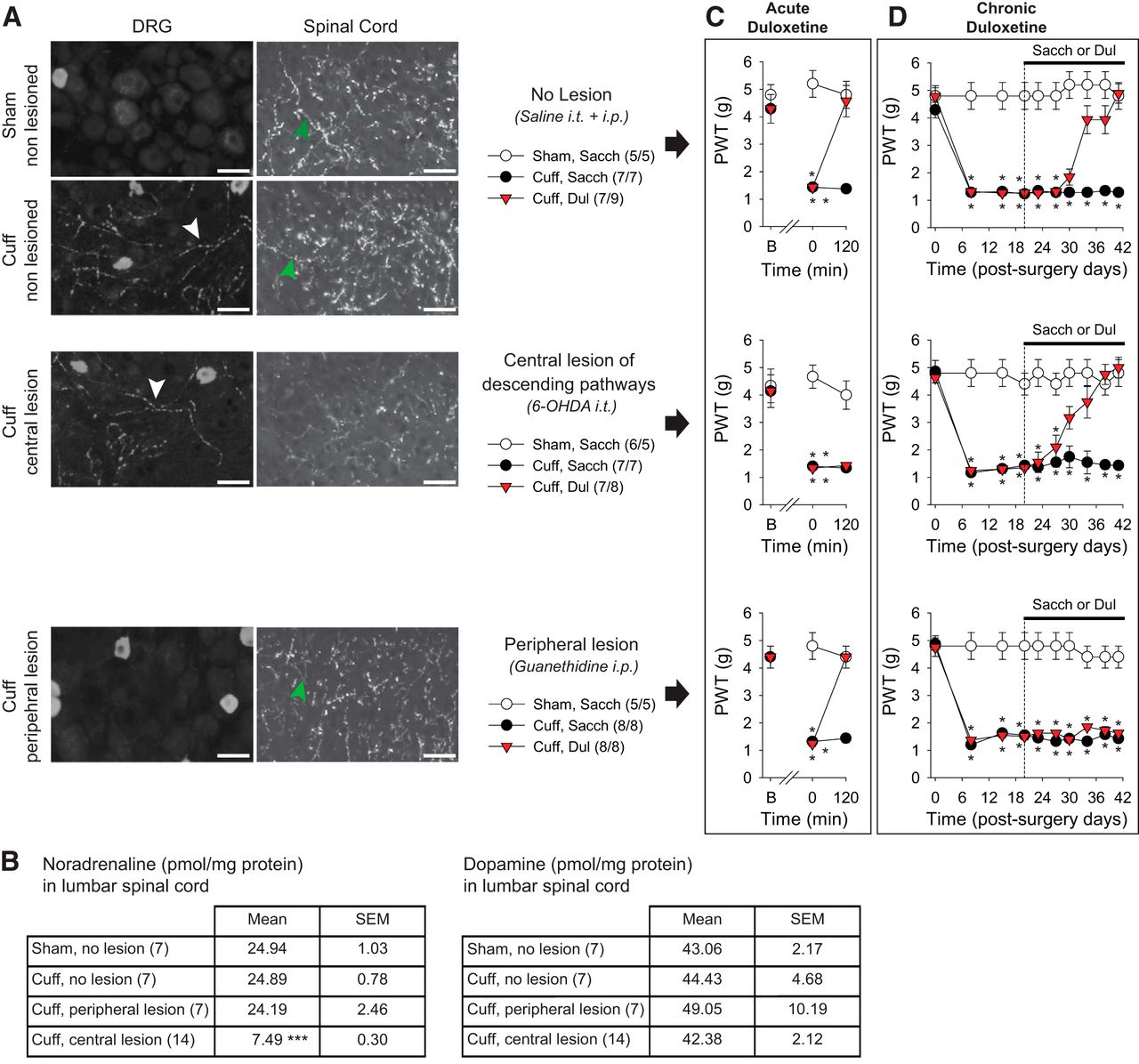 A Dual Noradrenergic Mechanism for the Relief of Neuropathic