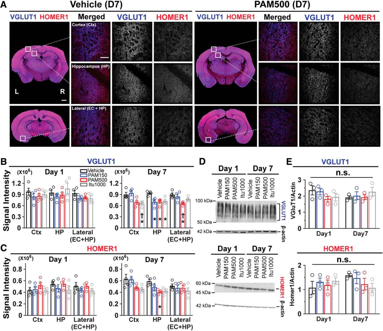 Characterization of Brain Dysfunction Induced by Bacterial