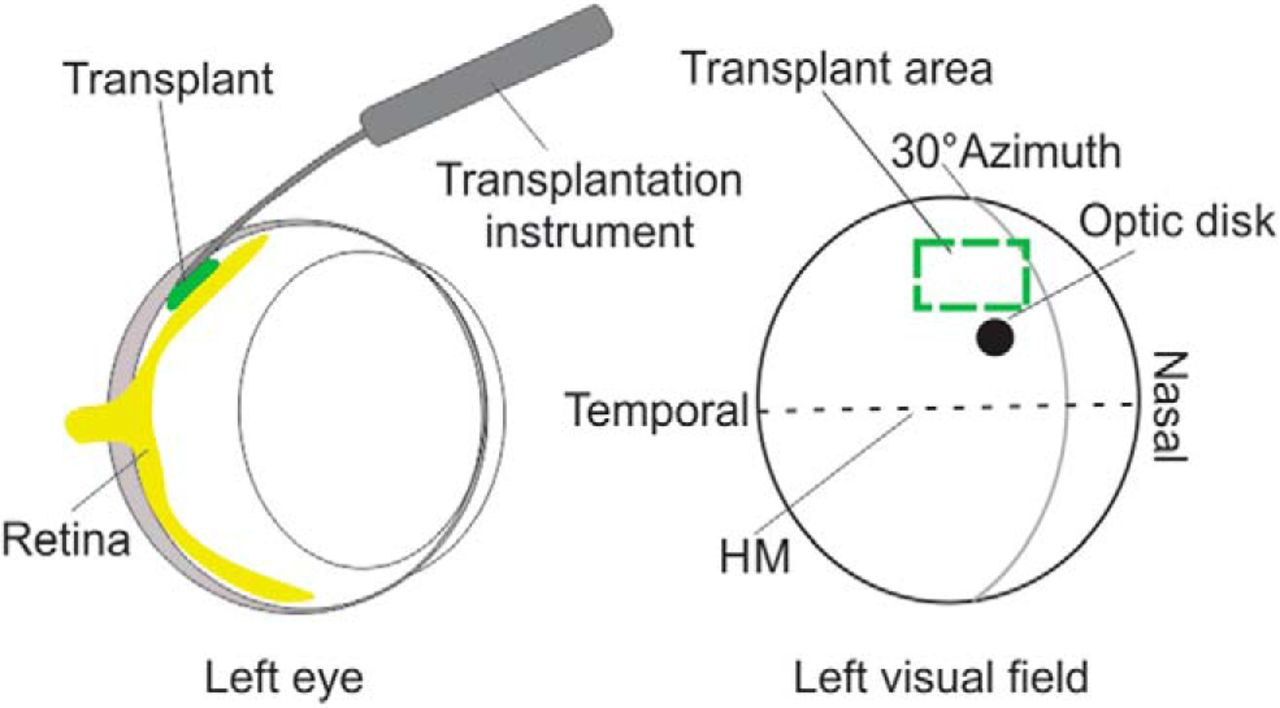 Detailed Visual Cortical Responses Generated By Retinal Sheet Using A Simple Rc Circuit Fill Up The Column Labeledcalculation Download Figure Open In New Tab