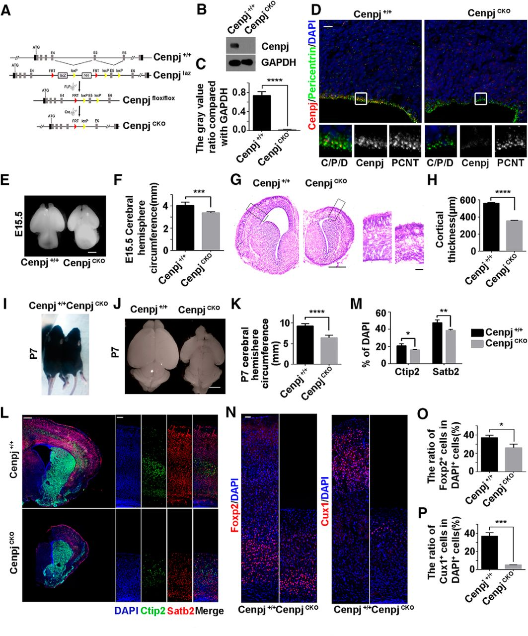 Cenpj Regulates Cilia Disassembly and Neurogenesis in the