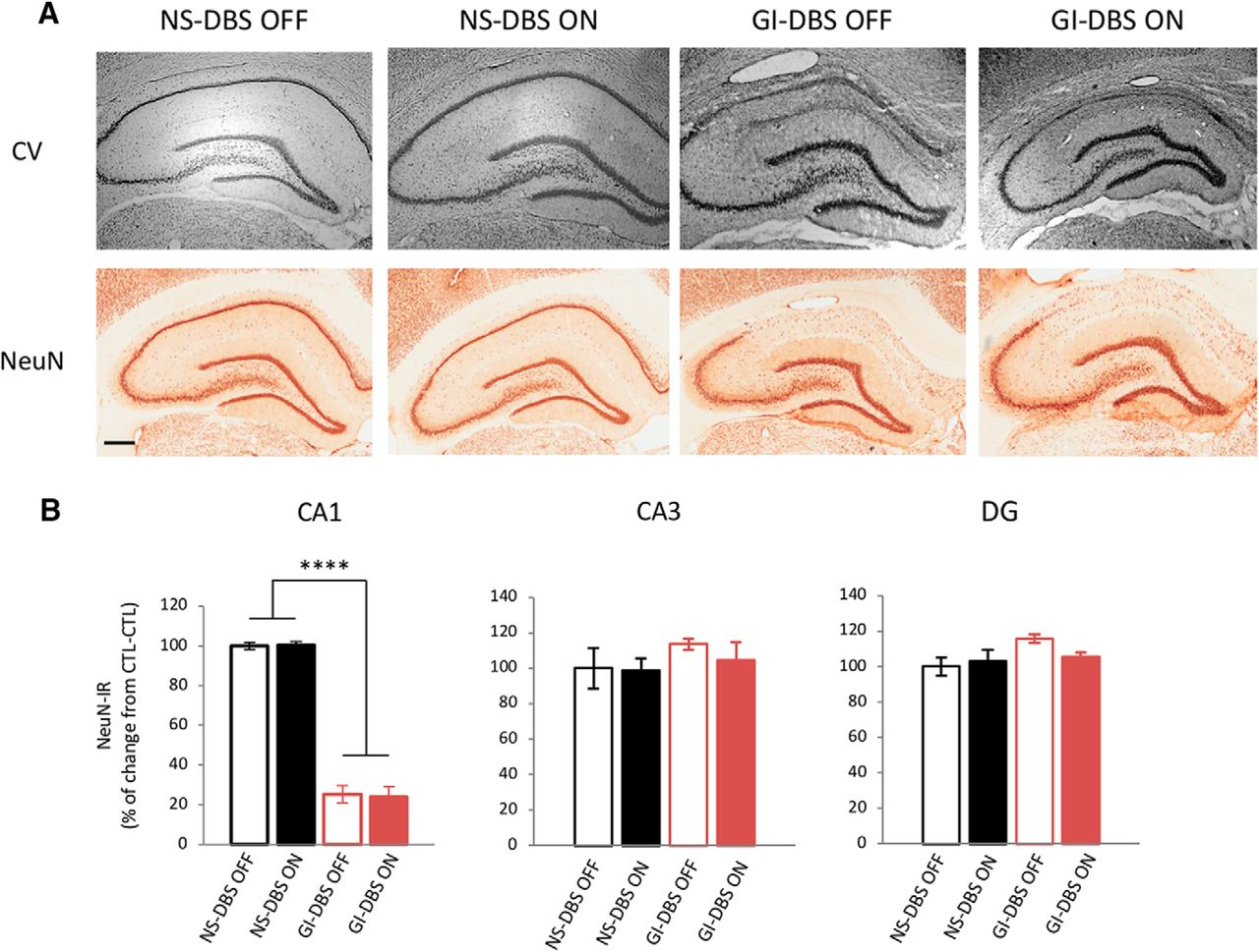 Deep Brain Stimulation Rescues Memory and Synaptic Activity in a Rat