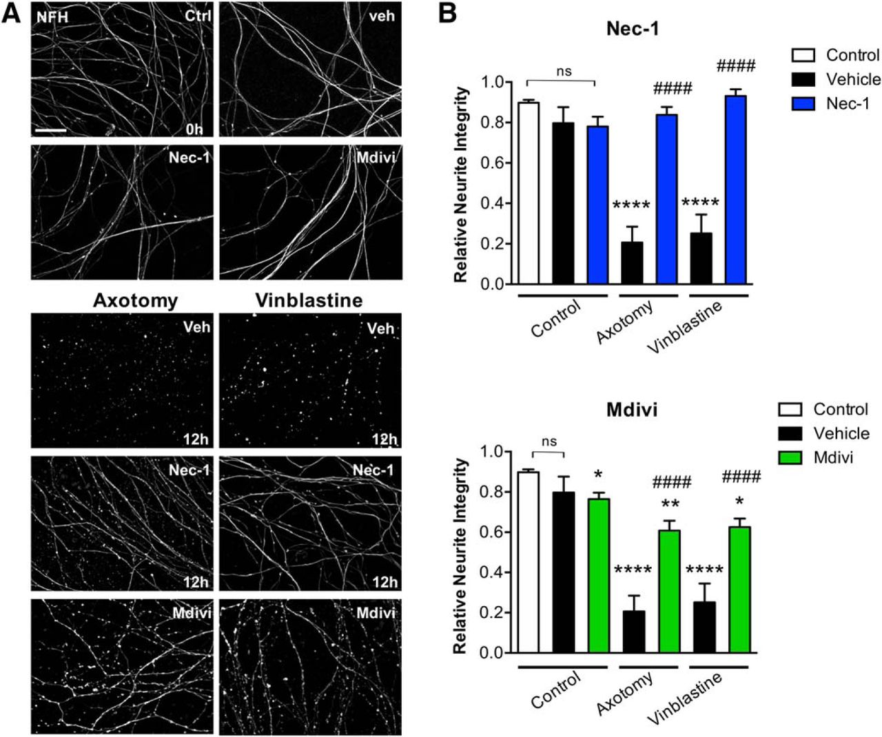 Axonal Degeneration Is Mediated by Necroptosis Activation | Journal