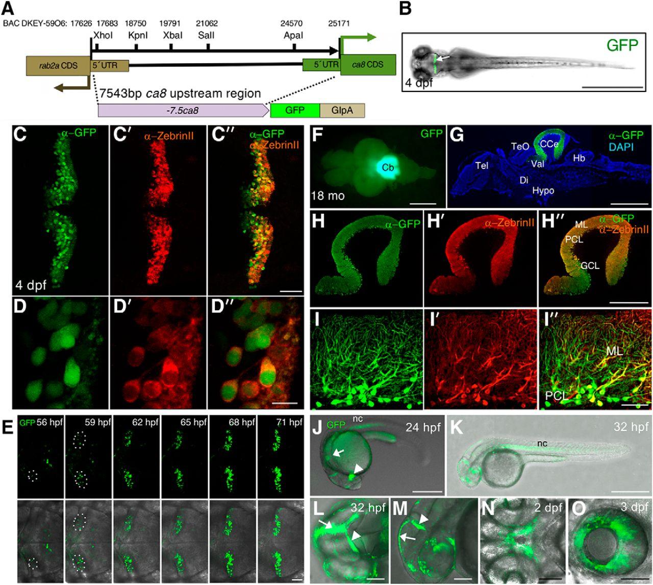 Modeling Neurodegenerative Spinocerebellar Ataxia Type 13 in