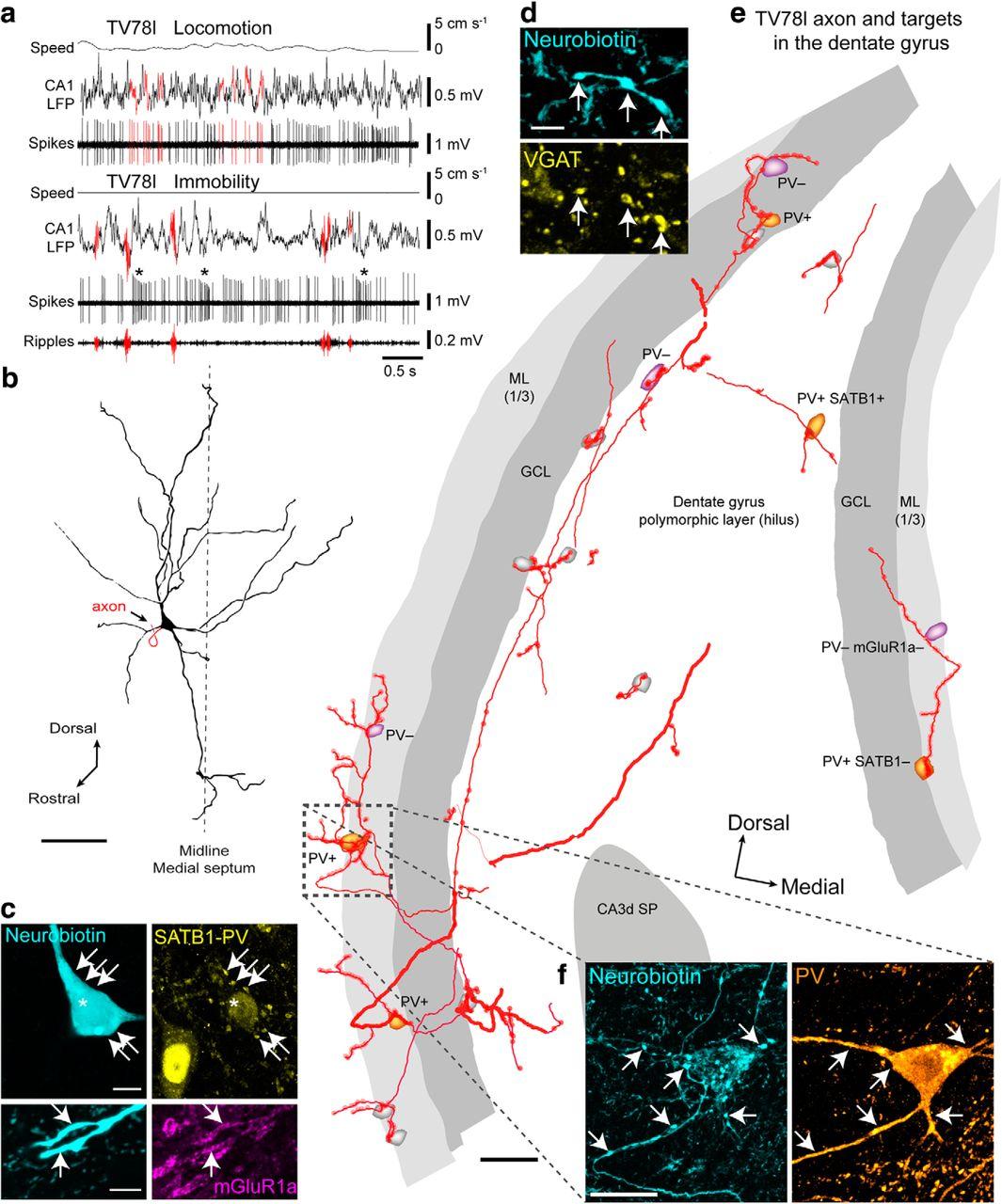 GABAergic Medial Septal Neurons with Low-Rhythmic Firing