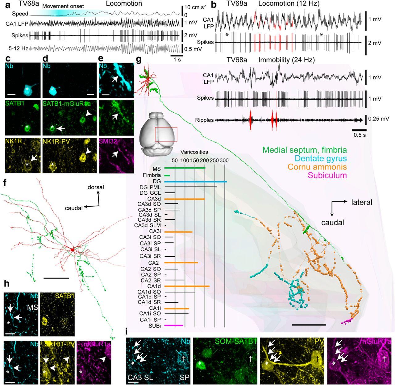GABAergic Medial Septal Neurons with Low-Rhythmic Firing Innervating