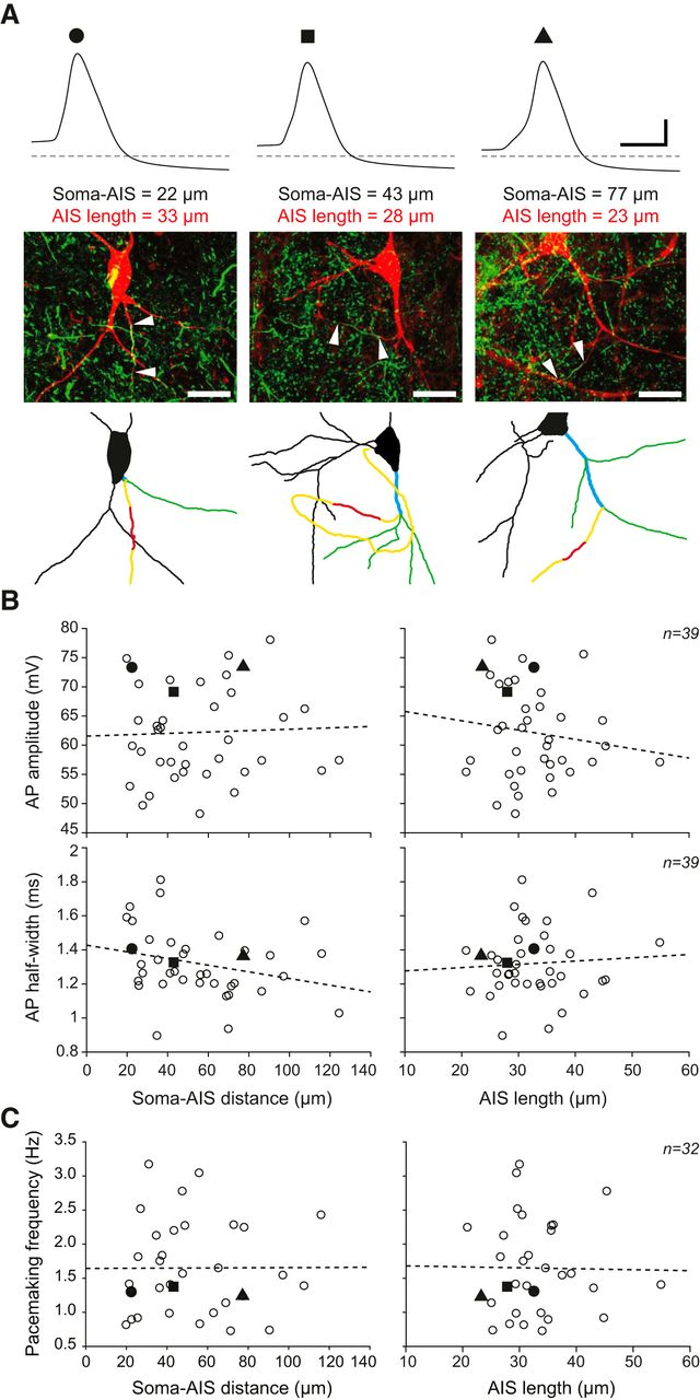 Robustness to Axon Initial Segment Variation Is Explained by