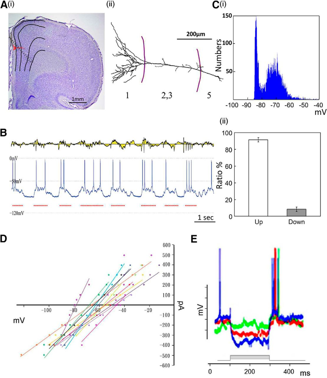 Spontaneous Cingulate High-Current Spikes Signal Normal and