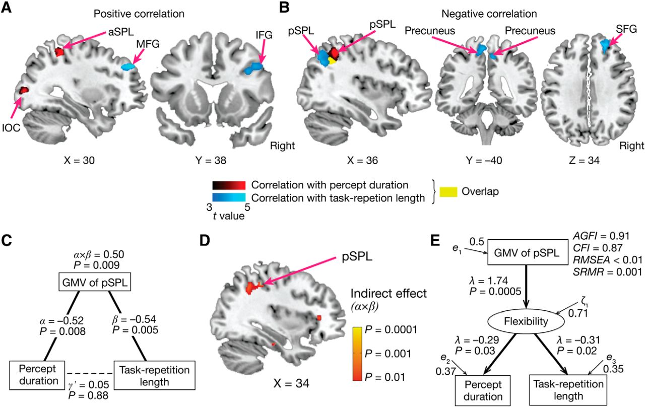 A Neuroanatomical Substrate Linking Perceptual Stability to