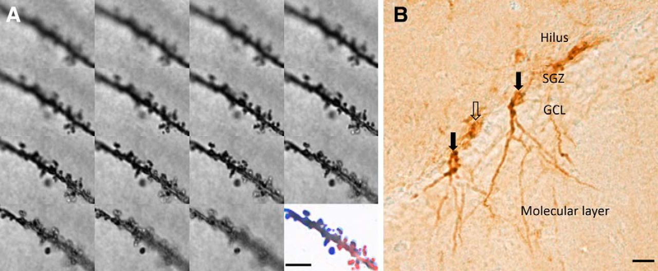 Mammillothalamic Disconnection Alters Hippocampocortical
