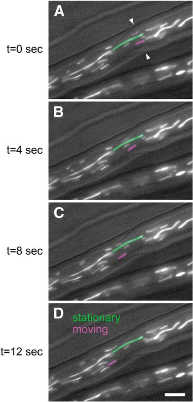 Local Acceleration of Neurofilament Transport at Nodes of