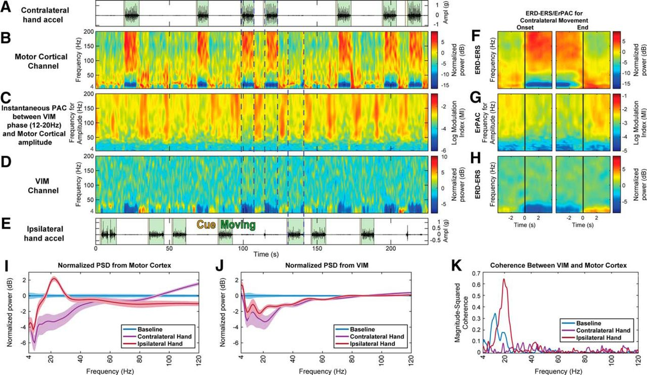 The Functional Role of Thalamocortical Coupling in the Human