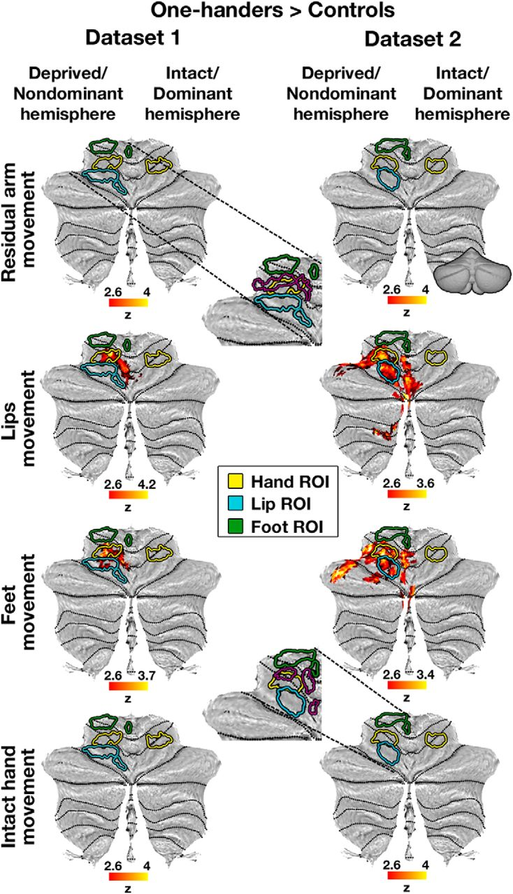 Remapping in Cerebral and Cerebellar Cortices Is Not ...