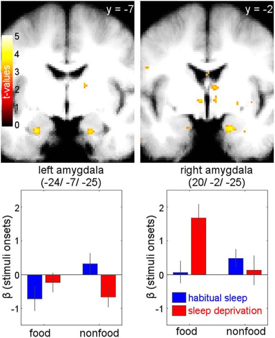 Sleep Deprivation Selectively Upregulates an Amygdala