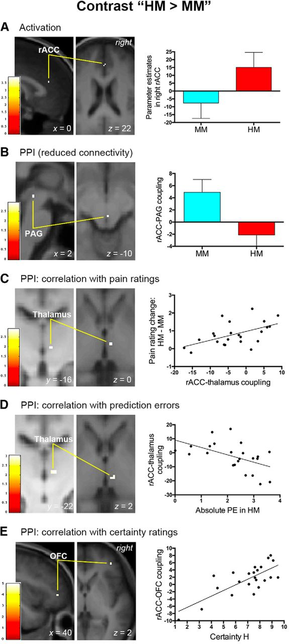 Effects of Positive and Negative Expectations on Human Pain