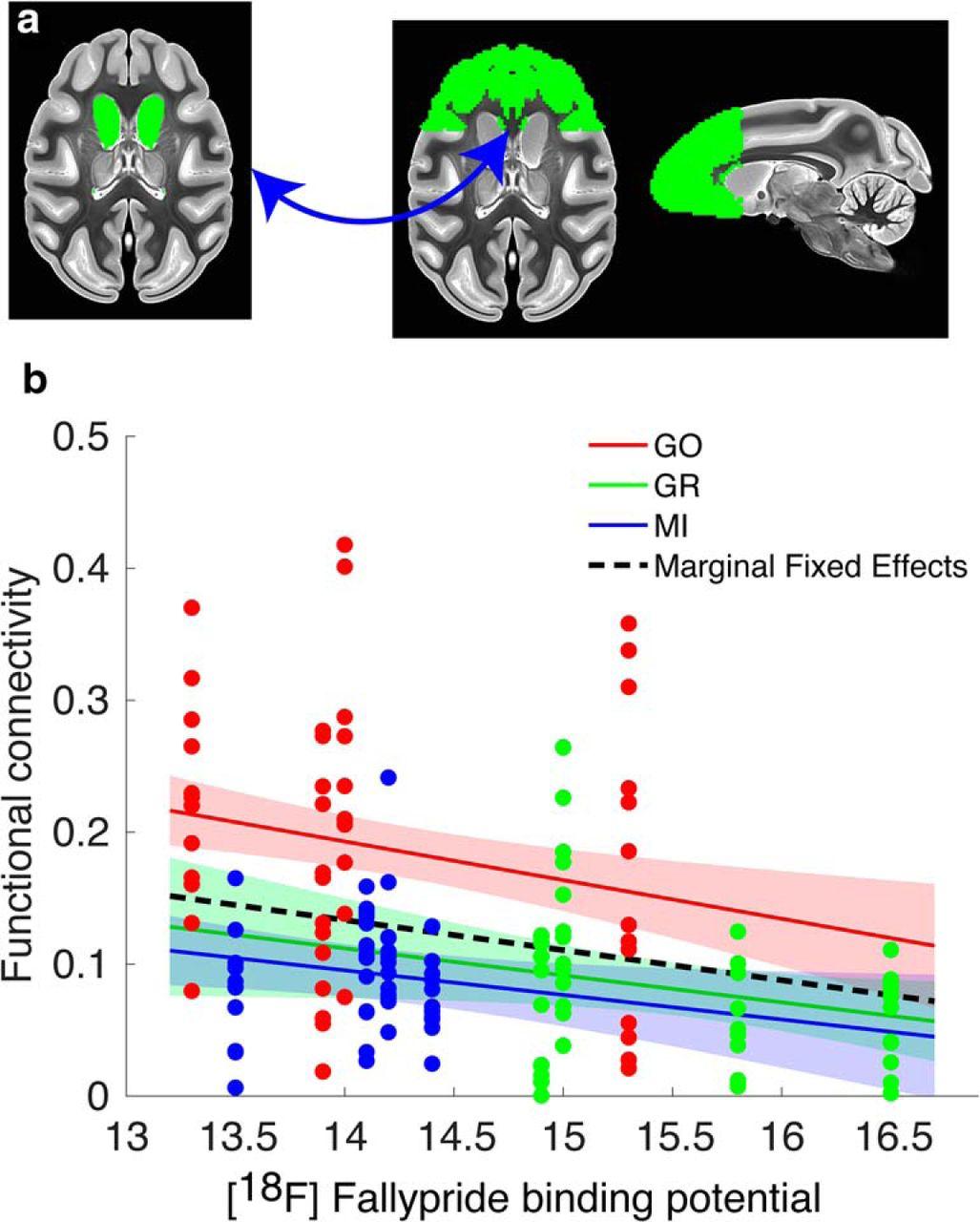 Changes in Endogenous Dopamine Induced by Methylphenidate Predict