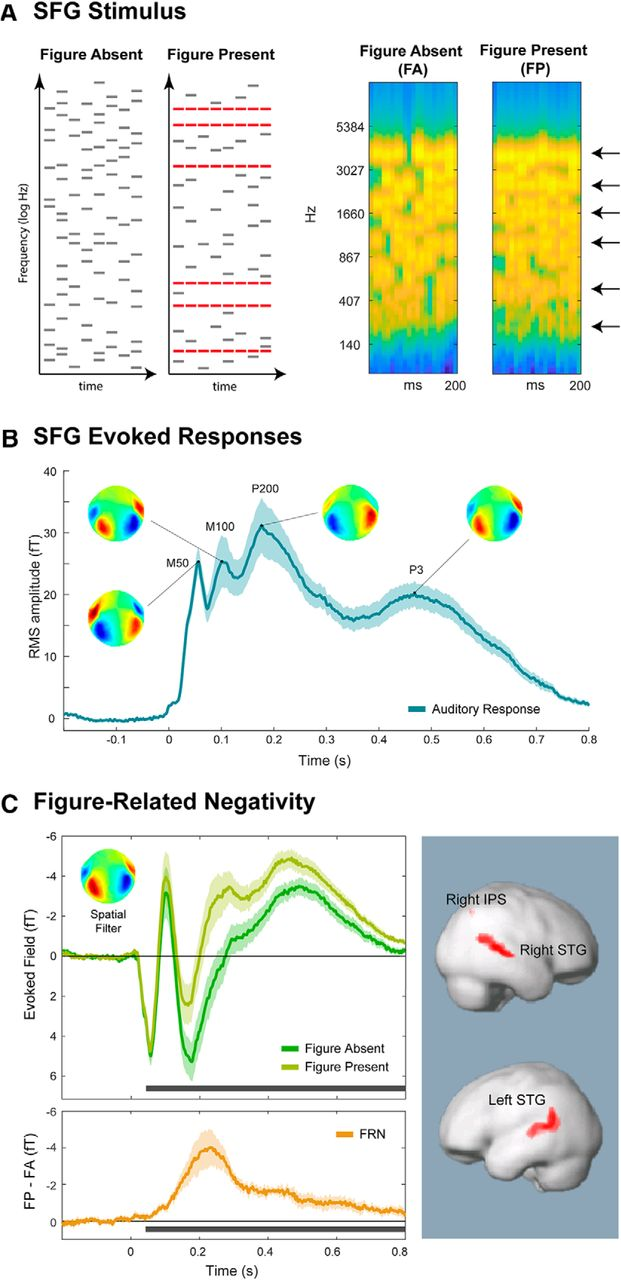 Auditory Figure-Ground Segregation Is Impaired by High Visual Load