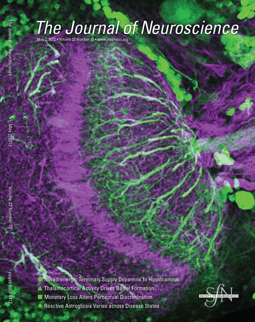 violet dopamine eye