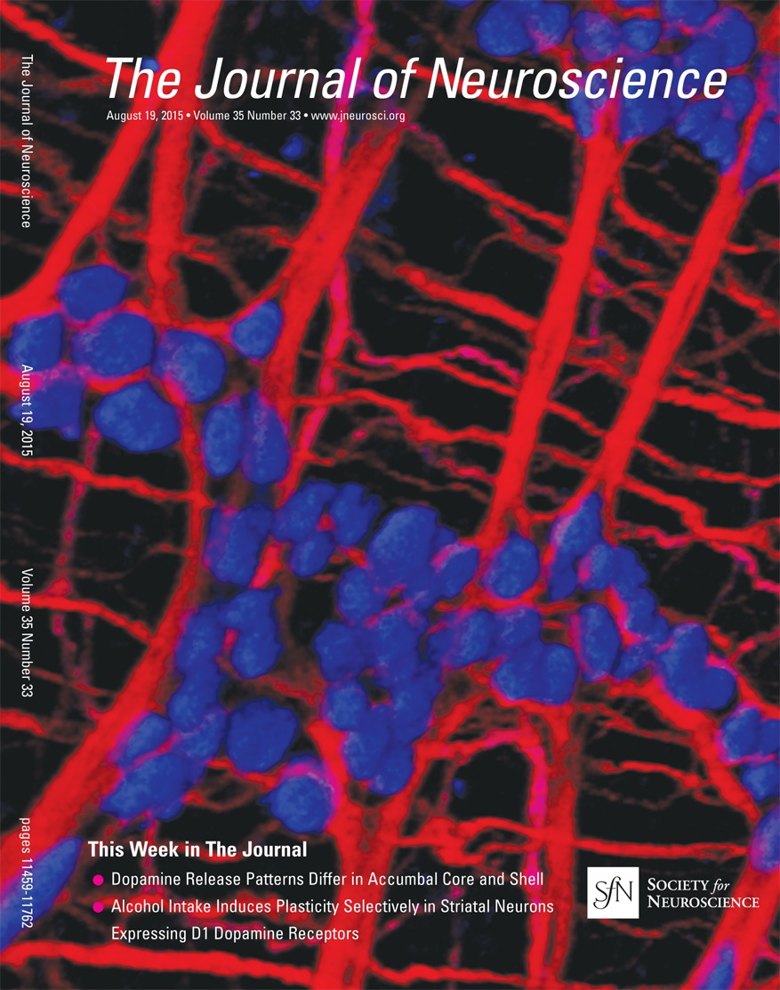 Alcohol Elicits Functional And Structural Plasticity Selectively In Advanced Circuits 33 Each Dopamine D1 Receptor Expressing Neurons Of The Dorsomedial Striatum Journal