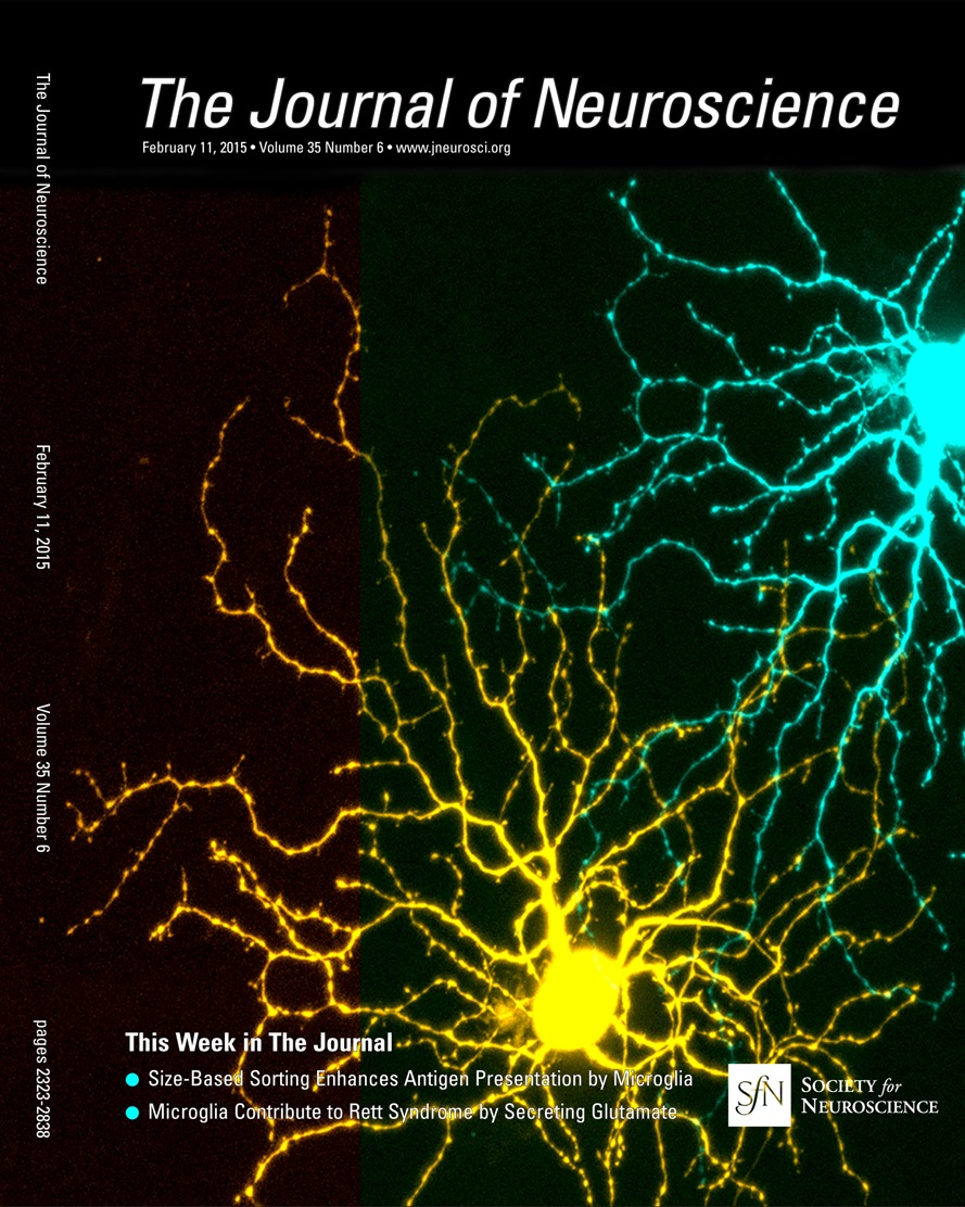 Control Of Axon Guidance And Neurotransmitter Phenotype Db1 Oliver 770 Wiring Diagram Hindbrain Interneurons By Lim Hd Code Journal Neuroscience