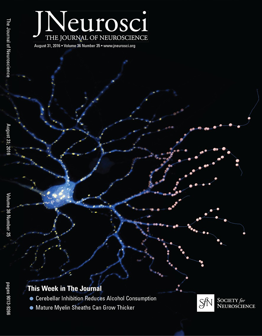 Selective Vulnerability of Specific Retinal Ganglion Cell