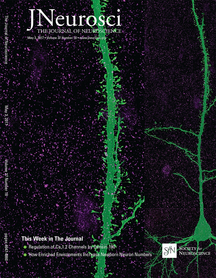 Densin 180 Controls The Trafficking And Signaling Of L Type Voltage