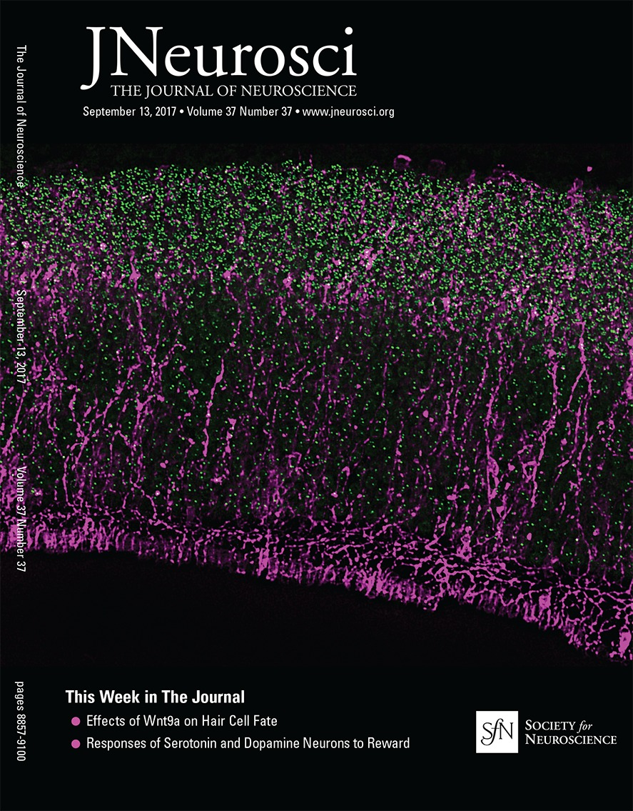 Learning and Stress Shape the Reward Response Patterns of ... on mechanical views, sociocultural views, biological views, psychology and world views,