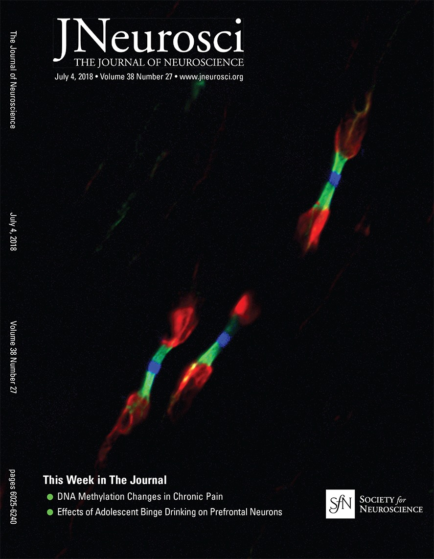 Alcohol Consumption During Adolescence In A Mouse Model Of Binge V C Injection Original Per Box Drinking Alters The Intrinsic Excitability And Function Prefrontal Cortex Through