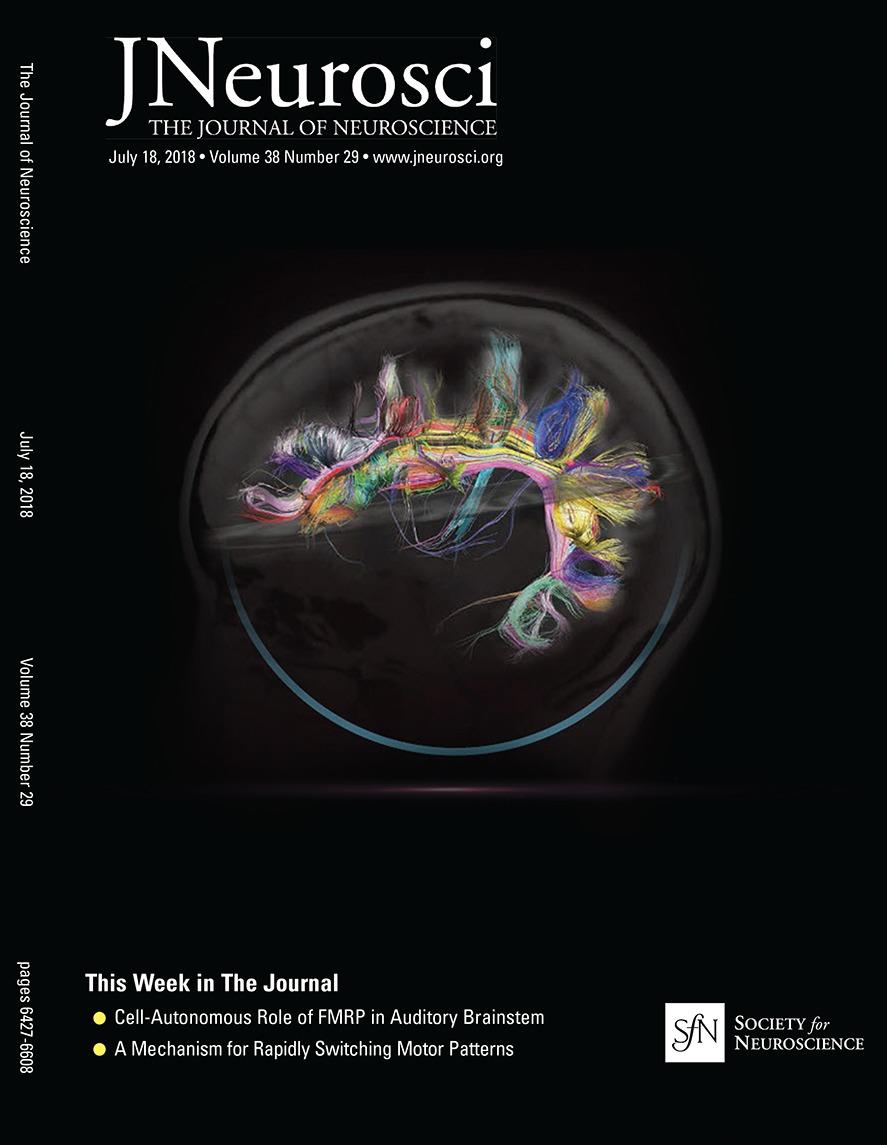 The State Of Nih Brain Initiative Journal Neuroscience Motor Control Circuit File Alternative Link Bidirectionmotorspeed