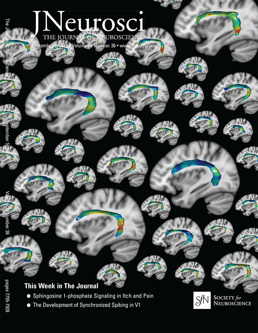 Brain GABA Levels Are Associated with Inhibitory Control