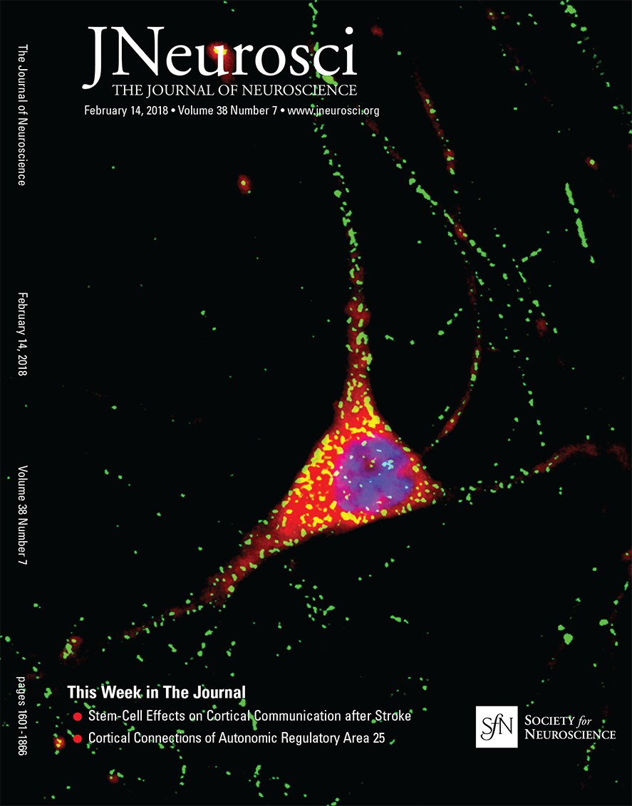 Neuroscientists Reverse Some Behavioral Symptoms Of >> A Shared Vision For Machine Learning In Neuroscience Journal Of
