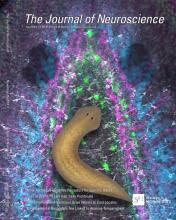 The Journal of Neuroscience: 34 (47)